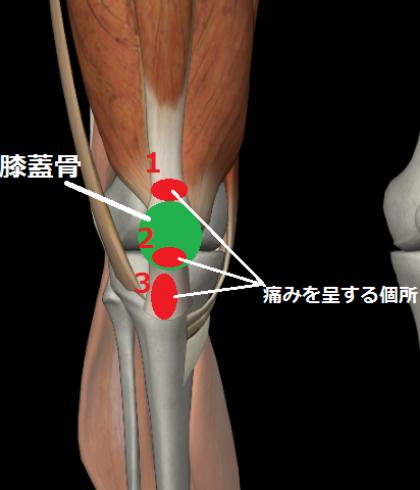 膝から大腿部(右前面イラスト)